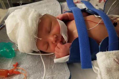 Lynora on the cooling bed in the NICU.